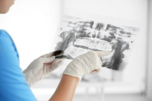 Colorado Springs oral surgery